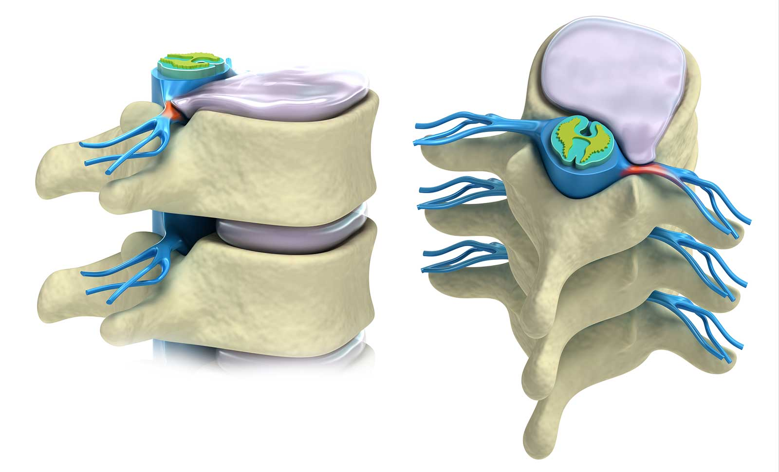 Best Herniated Bulging Disc Treatment Doctor